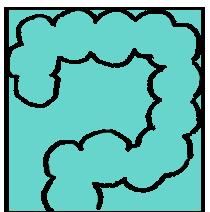 潰瘍性大腸炎(UC)